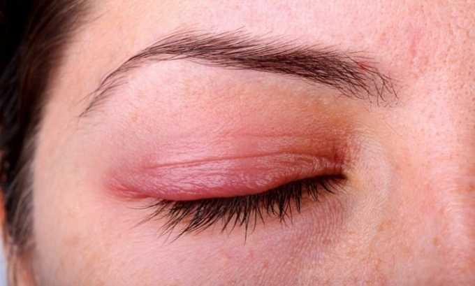 Глазные капли Дексаметазона закапывают при аллергических реакциях