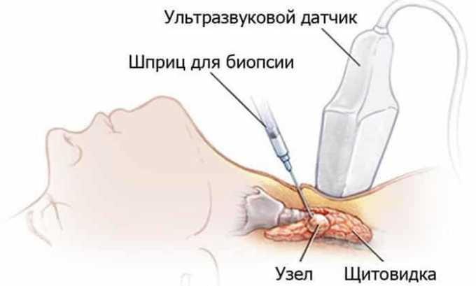 Схема проведения биопсии на щитовидной железе