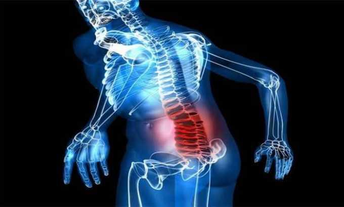 Ибупрофен назначают при симптомах защемления нерва в пояснице