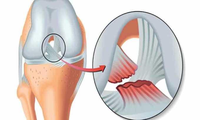 От приема препарата может развиться побочный эффект в виде разрыва сухожилий