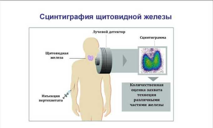 Сцинтиграфия выявляет активность, с которой идет процесс выработки гормонов.