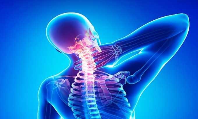 Препарат эффективен при лечении заболеваний остеохондроза