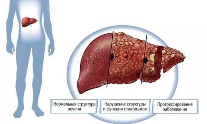 Передозировка активным веществом Йод-Нормила вызывает токсический гепатит