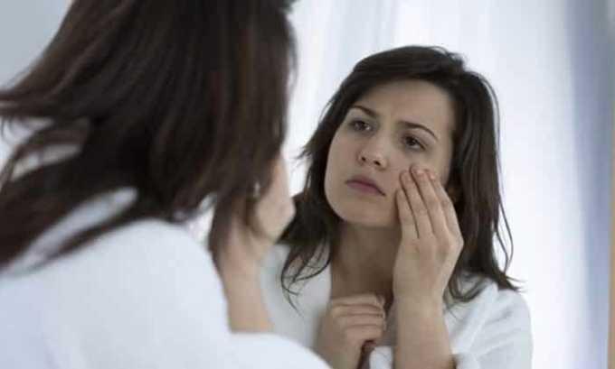 При прогрессировании расстройства щитовидной железы лицо пациента становится одутловатым