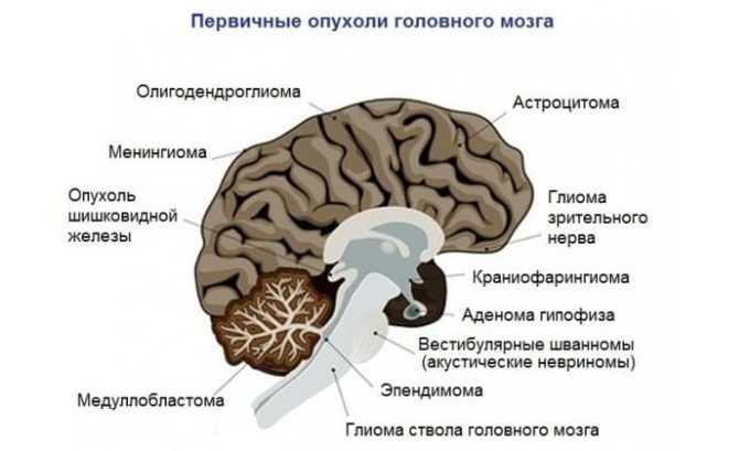 Блеоцин назначают для лечения опухоли головного мозга