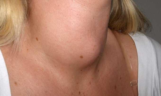 Элькар применяют для лечения тиреотоксикоза