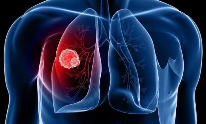 При туберкулезе применение Бетаспана Депо противопоказано