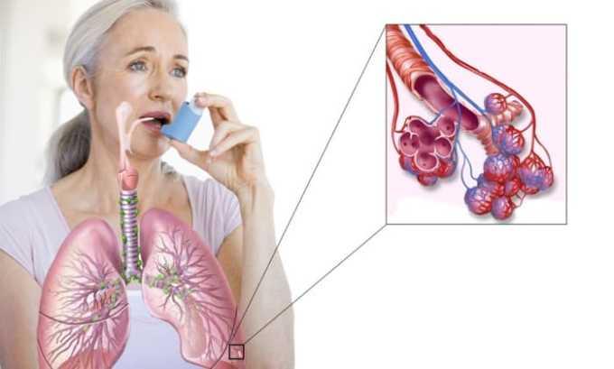 Строго запрещено назначать препарат людям с бронхиальной астмой
