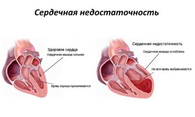 Как побочное явление при приеме препарата возможно развитие или усугубления сердечной недостаточности