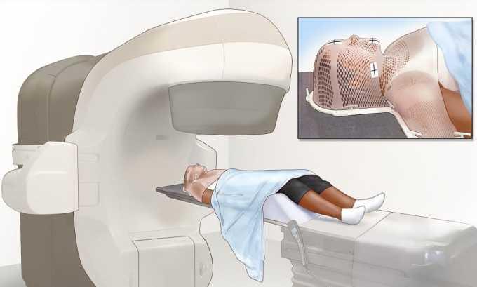 Одним из наиболее эффективных способов лечения рака щитовидной железы является лучевая терапия