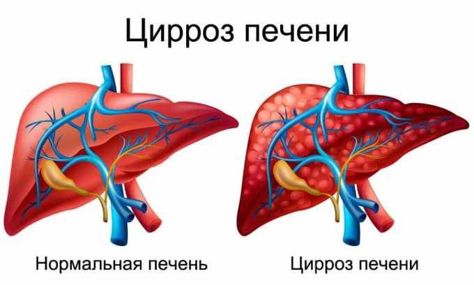 Прием препарата показан при циррозе печени