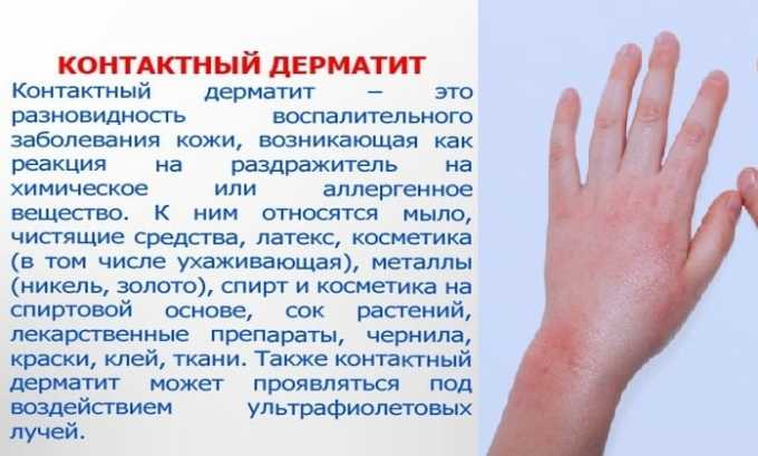 Препарат используют при контактном дерматите