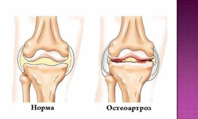 Кетонал назначают при остеоартрозе