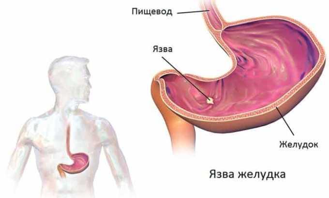 Тиамин показан при язве желудка