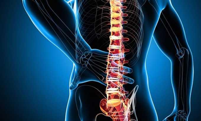 В составе комплексной терапии препараты используют в лечении заболеваний позвоночника, сопровождающихся болью