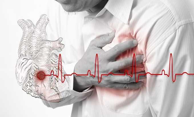 Ограничениями к приему лекарственного средства являются обострение миокардита или инфаркта миокарда
