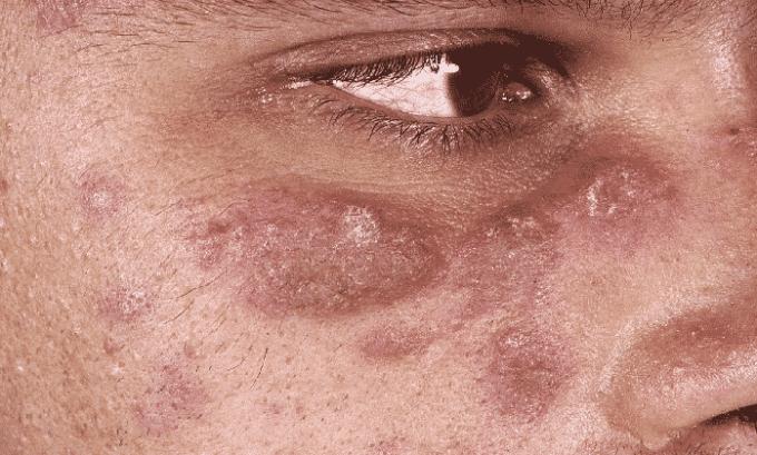 Мазь имеет как противопоказание туберкулез кожи