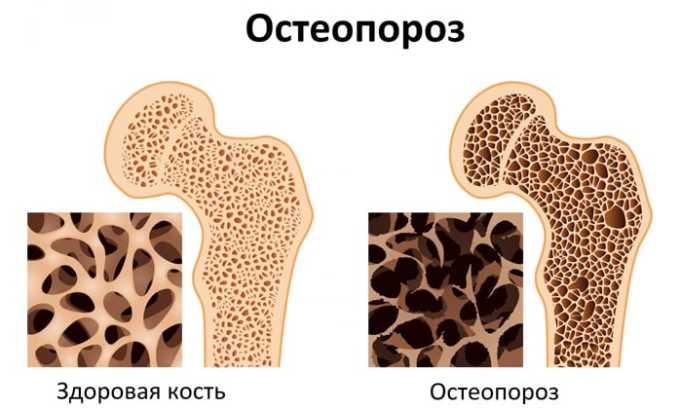 Лекарство нельзя использовать при остеопорозе