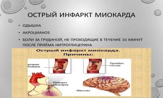 Препарат применяется для лечения и профилактики развития острого инфаркта миокарда