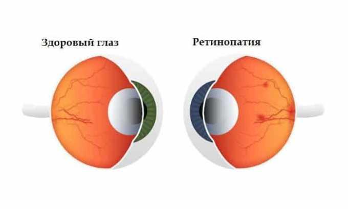 Дле лечения посттромботической ретинопатии прописывают Озурекс