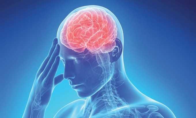 Препарат назначается при отеке мозга