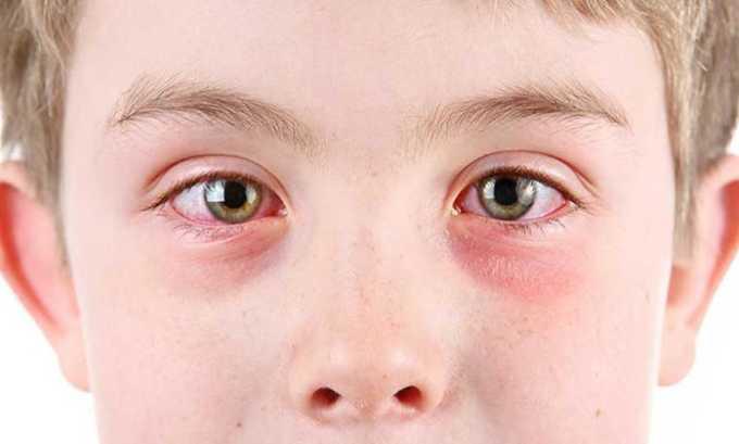 Увеит и воспаления в глазу, которые не реагируют на использование местных кортикостероидов лечат препаратом Депо-Медрол