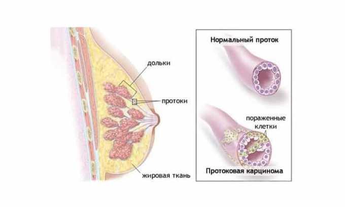 Препарат используется при карциноме молочной железы