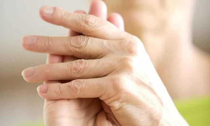 Суппозитории назначаются при ревматоидный артрите