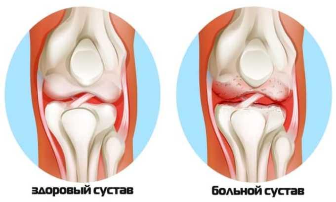 Диклофенак применяют для лечения обширного воспаления тканей суставов и сильной боли