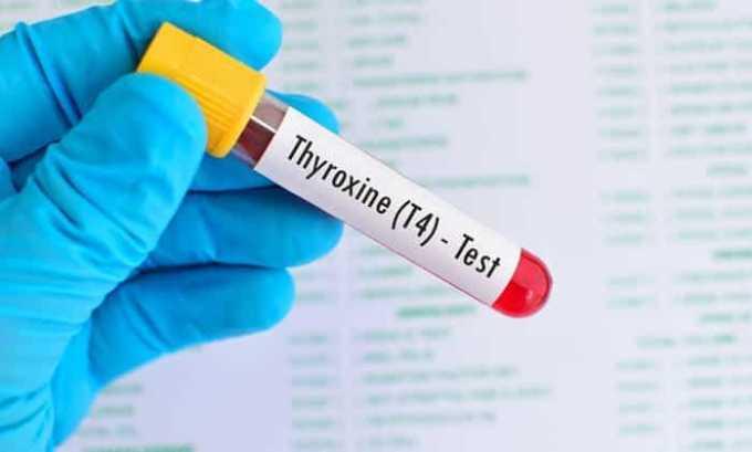 Одним из видов диагностики щитовидной железы является анализ крови на гормоны
