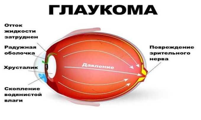 Препарат показан при глаукоме с поражением зрительного нерва