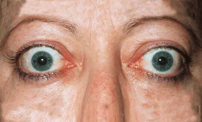 Противопоказан Эутирокс 25 при тиреотоксикозе