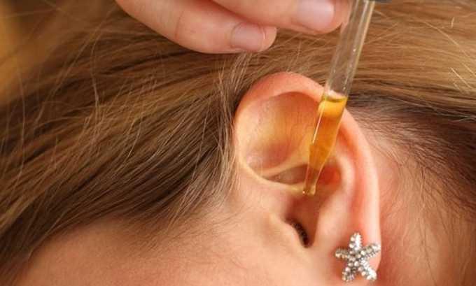 Доза препарата может разниться в зависимости от вида заболевания. Например, лечение отита: 3-4 капли в ухо, где развивается воспалительный процесс