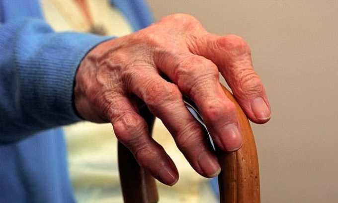 Препарат назначают при болевом синдроме на фоне болезней мышц и суставов
