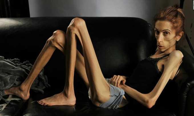 Левокарнил 500 назначают при анорексии