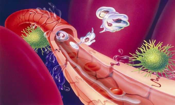 Вобэнзим может быть рекомендован в качестве вспомогательной терапии в процесс очищения организма от паразитов