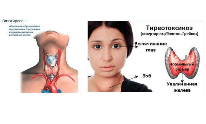 Препарат принимают при гипертиреозе