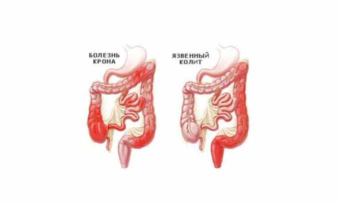 Препарат нужно с особой осторожностью принимать пациентам, страдающим язвенным колитом