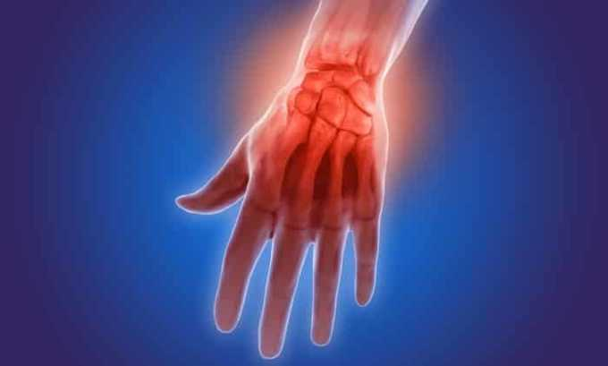 Средство назначается при заболеваниях опорно-двигательного аппарата воспалительного характера