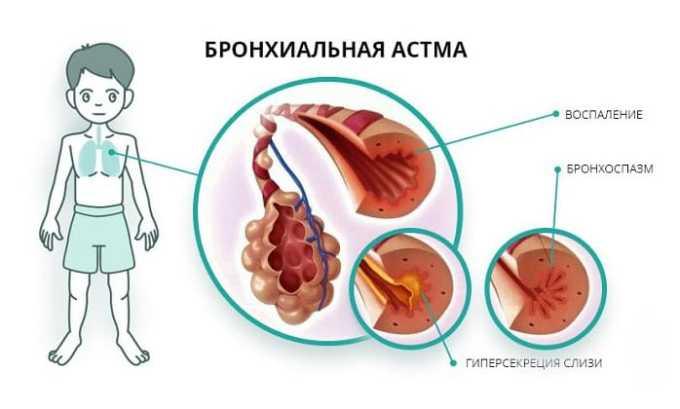 Пропранолол не назначают при наличии бронхиальной астмы