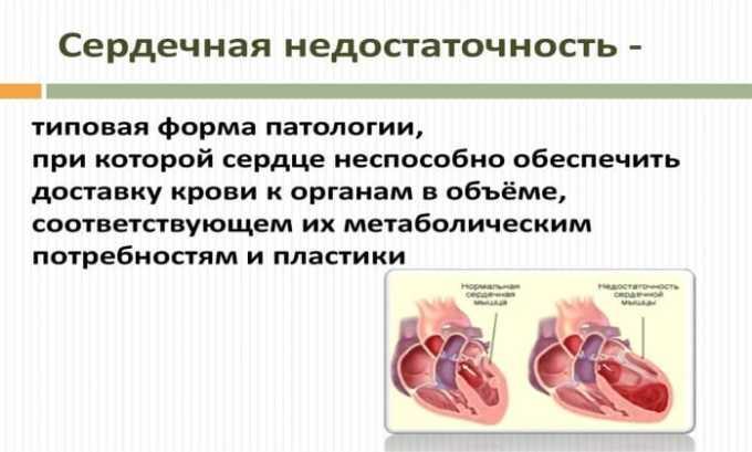 Диклофенак противопоказан при сердечной недостаточности