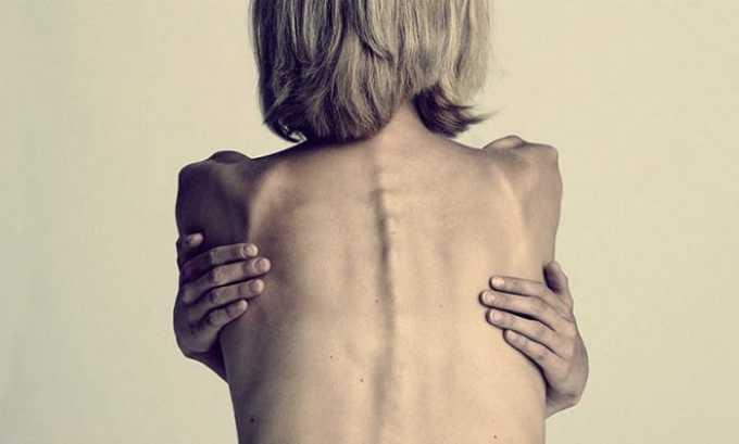 ЛС применяют при нервной анорексии