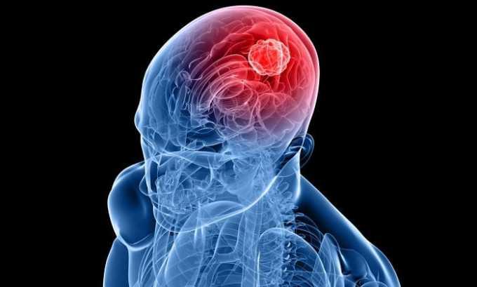 Передозировка медикаментом ведет к появлению медикаментозного менингита