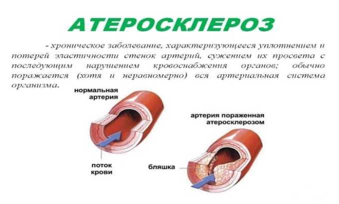 Среди возможных противопоказаний приема препарата можно отметить атеросклероз