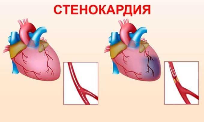 Беталок назначают для лечения стенокардии