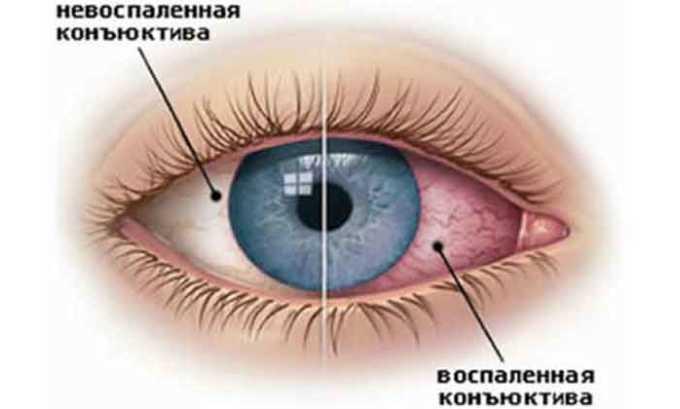 Один из побочных эффектов Озурдекса- покраснение конъюнктивы