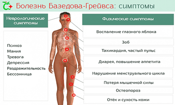 При Базедовой болезни имеет место гиперфункция железы, что способствует повышению содержания гормонов в крови. Эти гормоны нарушают работу других органов