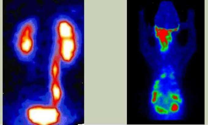 Сцинтиграфия помогает оценить функциональную активность щитовидки