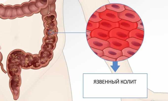 Препарат Диклофенак может привести к язвенному колиту