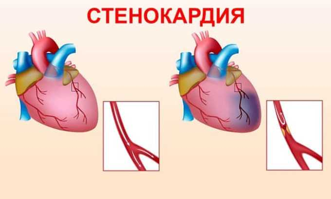 Эгилок Ретард используют для профилактики стенокардии